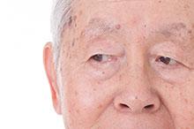 眼瞼・眼表面疾患